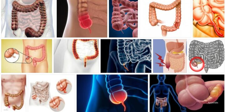 Meaning of Appendix