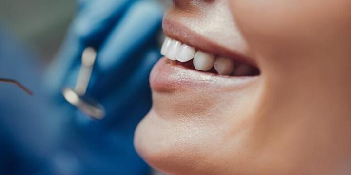 Meaning of Canker Sores