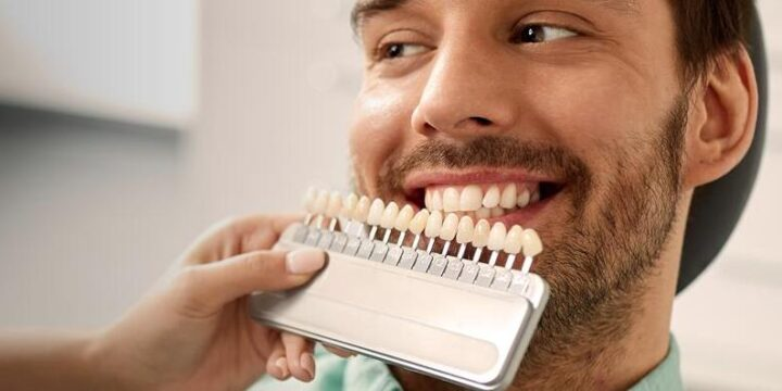 Meaning of Whitening